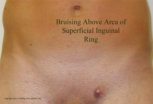 Bruising coming through superficial inguinal ring of the abdominal connective tissue of a patient